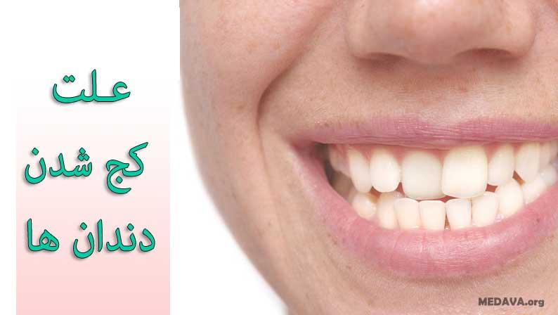 علت کج شدن دندانها در کوردکان و بزرگسالان