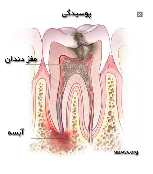 علت و نحوه تشکیل آبسه در دندان