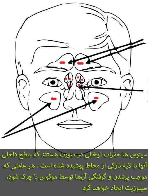 سینوزیت و دندان درد