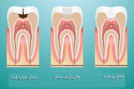 روش پر کردن دندانها