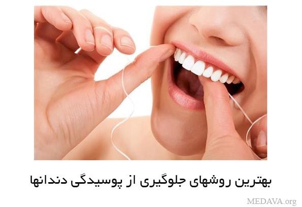 روشهای جلوگیری از پوسیدگی دندانها