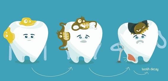 روند پوسیده شدن دندانها