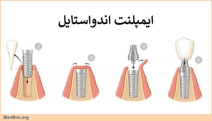 معرفی ایمپلنت های مختلف دندانی