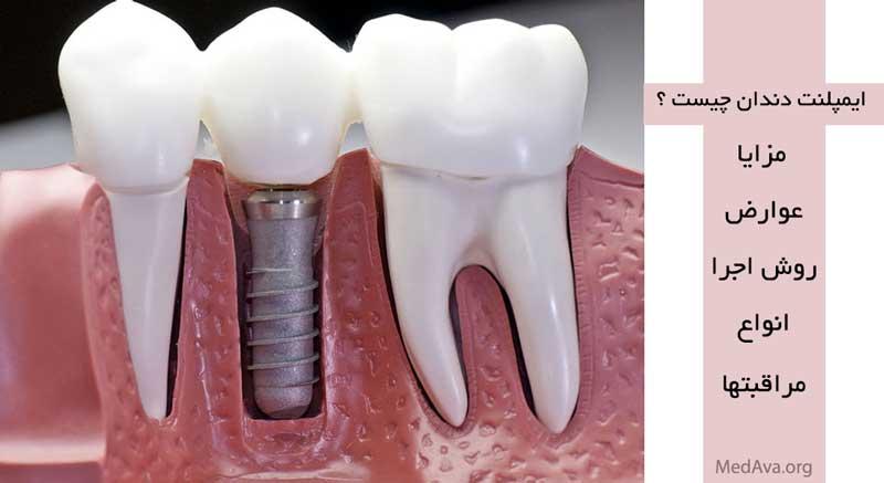 کاشت دندان به روش ایمپلنت