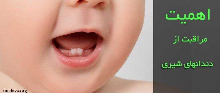 اهمیت مراقبت از دندانهای شیری