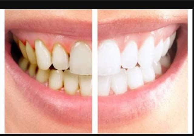 دندان ها بعد از جرم گرفتن تغییر رنگ پیدا می کنند.
