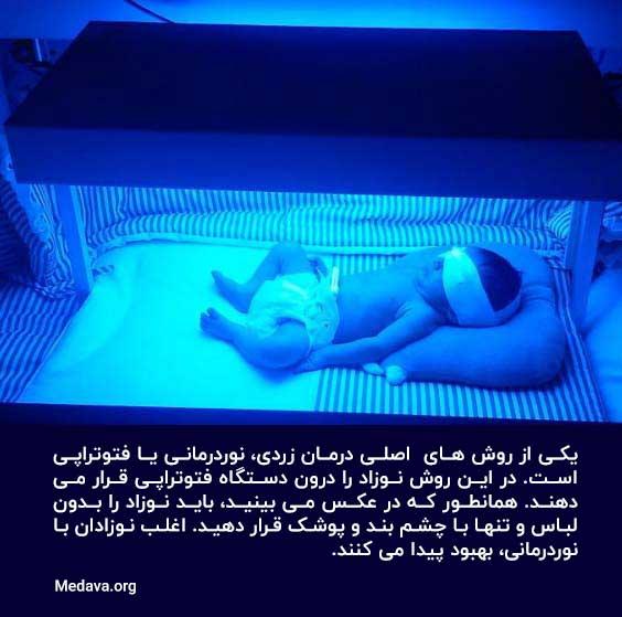 یکی از روش های درمان زردی در نوزادان، نوردرمانی یا فتوتراپی است.