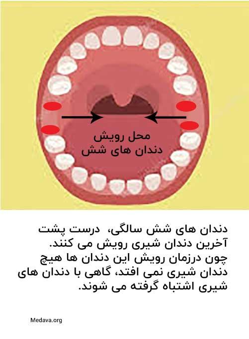 درد دندان شش سالگی چگونه است؟