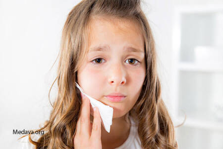 علائم بیماری لثه در کودکان چیست